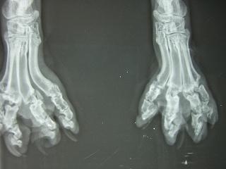 骨軟骨異形成症のレントゲン写真