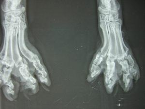 骨軟骨異形成症_レントゲン写真